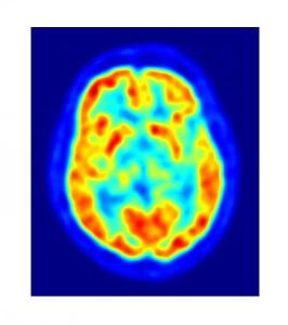 PET-Gehirnscan-hypnose