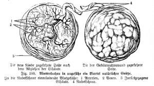 Mutterkuchen-Plazentaatrennung-Geburtstrauma